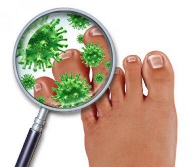 hongos en las uñas, pie de atleta
