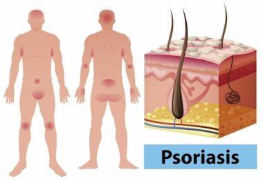 psoriasis y tratamientos naturales
