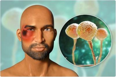 studio relaciona la hiperglucemia y el uso prolongado de mascarillas de tela con el riesgo de mucormicosis asociado a COVID-19